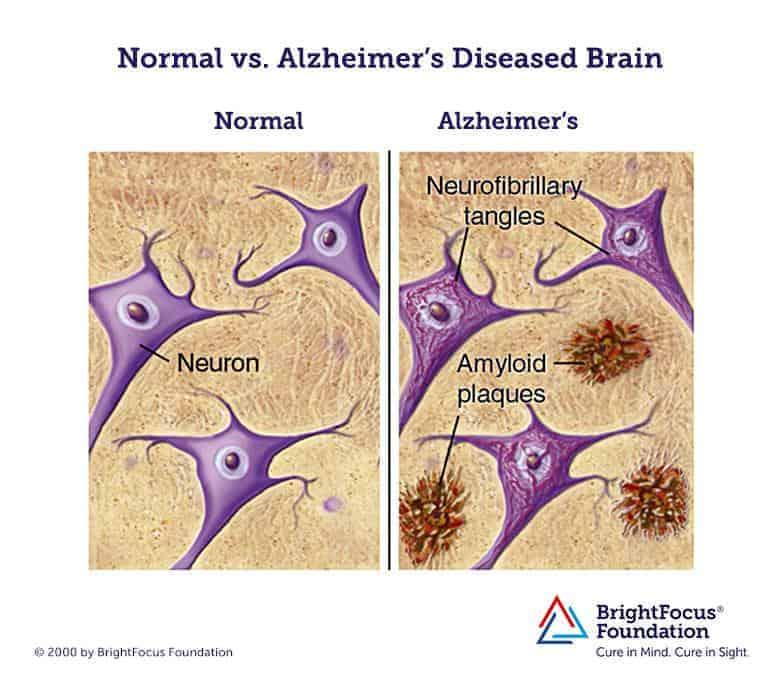 Normal vs alzheimer brain