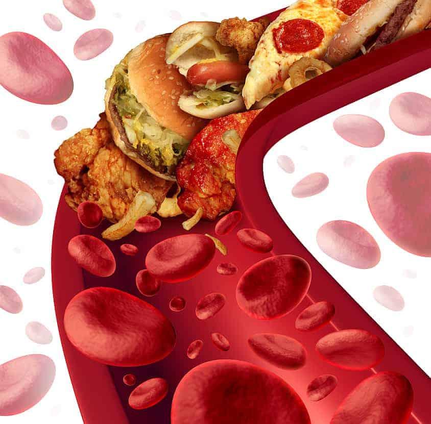 cholesterol blokovana tepna