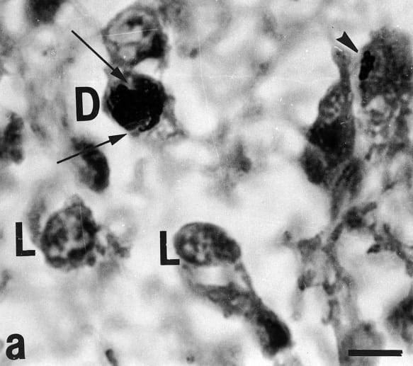 pinealocyty v epifyze